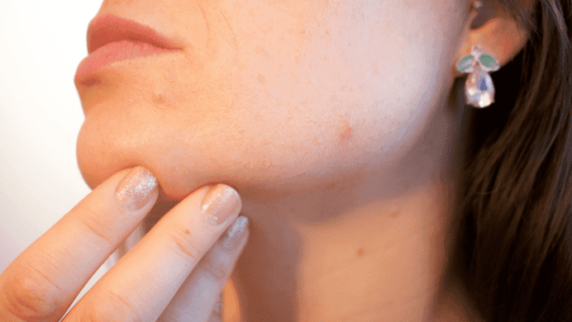 バリア機能の低下した肌